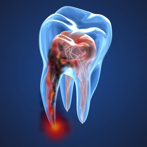 Damaged teeth xray view. Medically accurate tooth 3D illustration